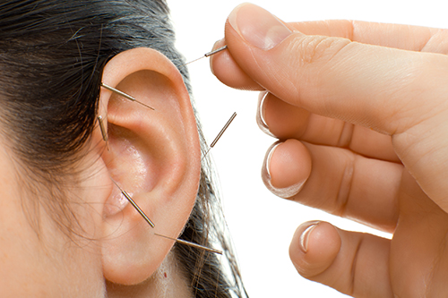 Akupunktur: Behandlungsszene im Heilquartier